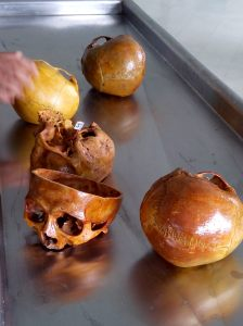 Real human skulls for closer inspection and study by medical students